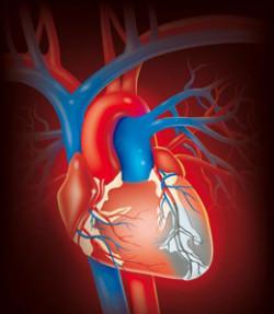 Инфаркт миокарда и его симптомы.