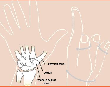 Артроз большого пальца руки фото