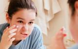 Почему появляются прыщи у подростков