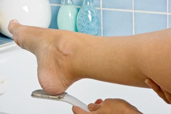 Как вывести шпору на ступне в домашних условиях