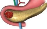 панкриатит