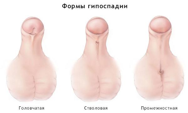 Половой член в разнообразность кожи