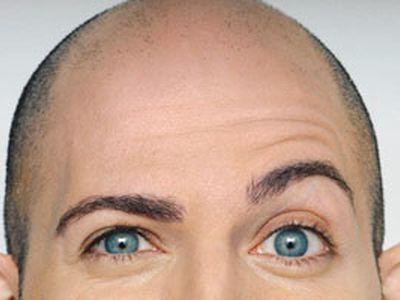 Что делать если выпадают волосы от утюжка майл ру