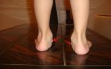 Как исправить плоскостопие у ребенка