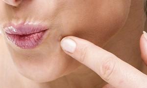 Как-избавиться-от-бородавки-на-лице