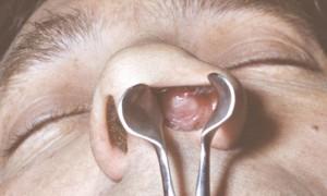 Рана в носу