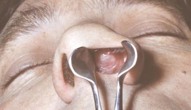 Болячки в носу: причины, чем лечить, чем мазать и что делать
