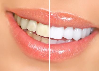 Отбеливание зубов одесса
