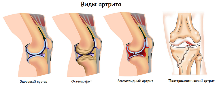 vidy-artrita