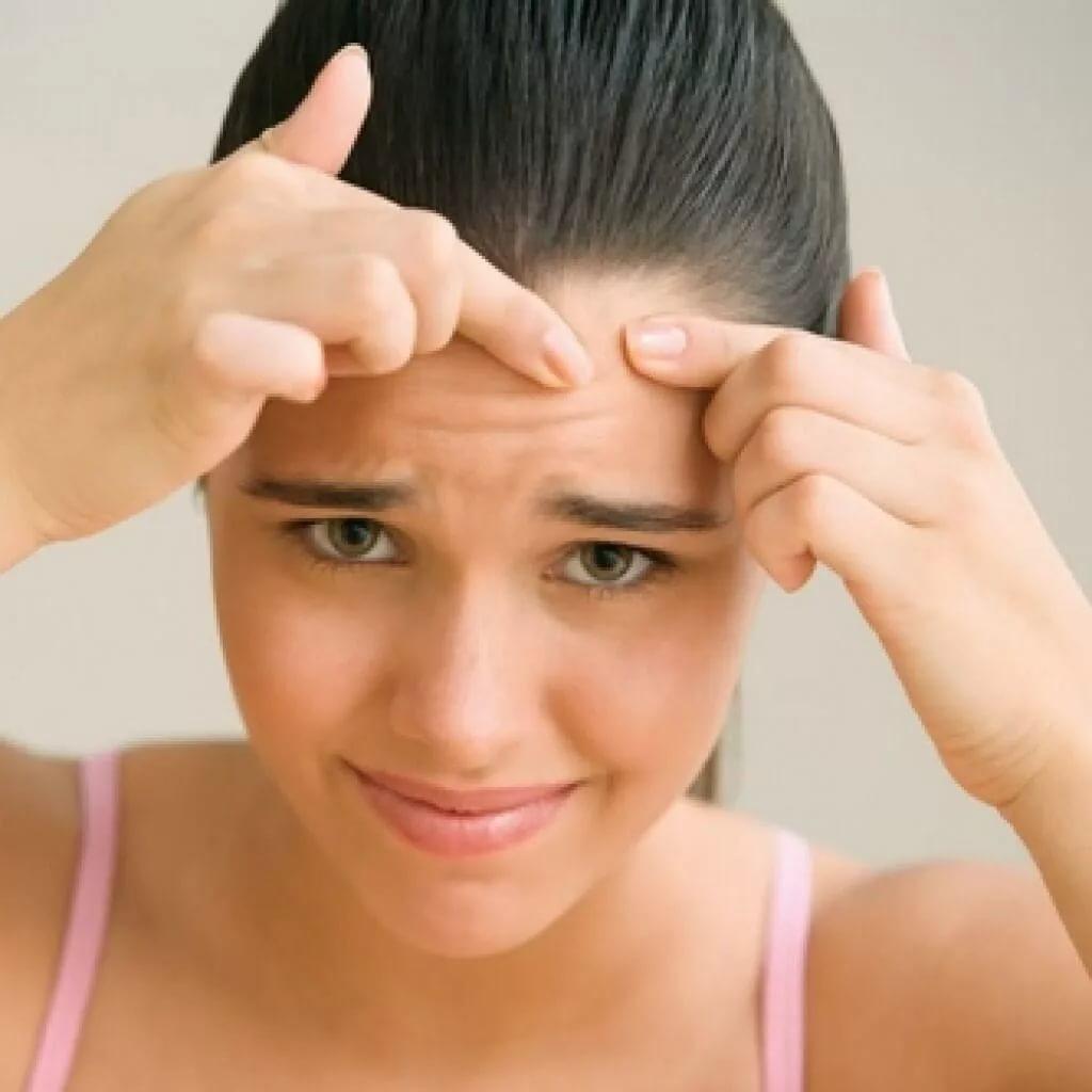 Как избавиться от прыщей на лбу в домашних условиях подростку